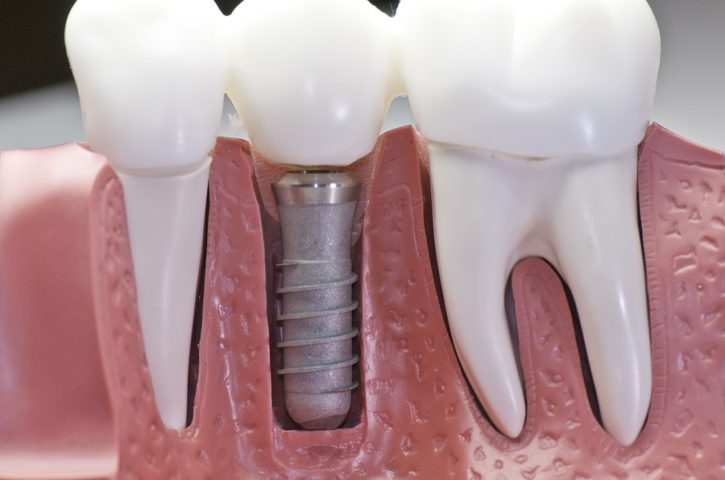 When to get a dental implant